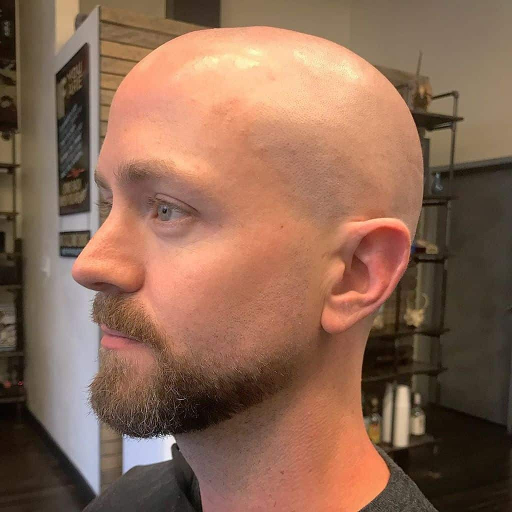 A Man Wearing A Razor Shaven Haircut. The Hair Is Shaved To The Skin Leaving A Bald Head