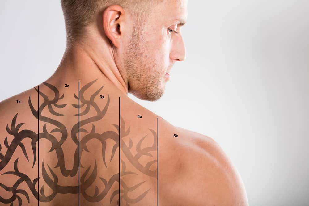 Laser Tattoo Removal On Shirtless Man's Back