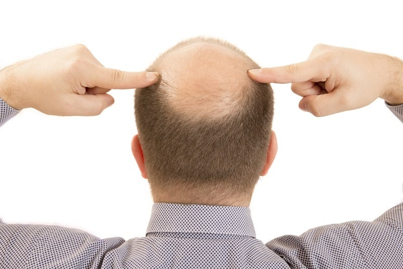 Everything You Need To Know About Going Bald