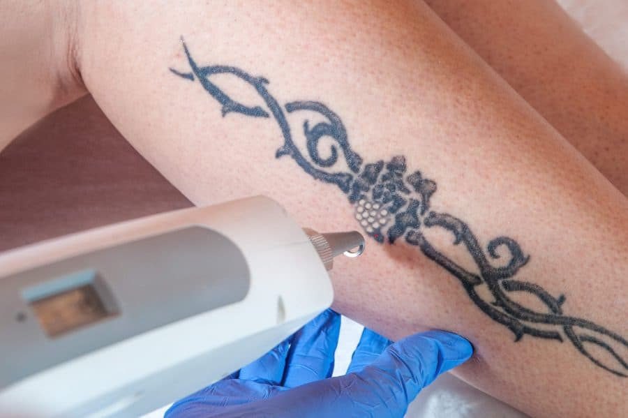 Poor Barbed Wire Tattoo Being Removed