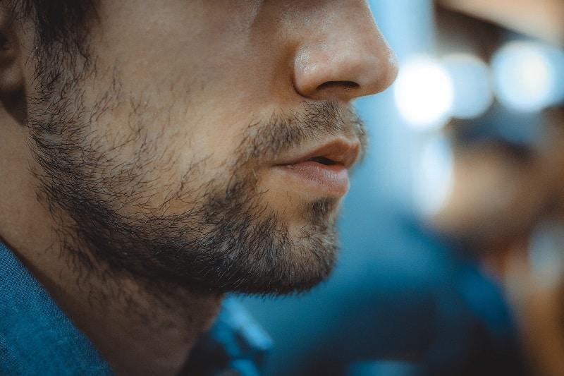 Spottiness on men's beards