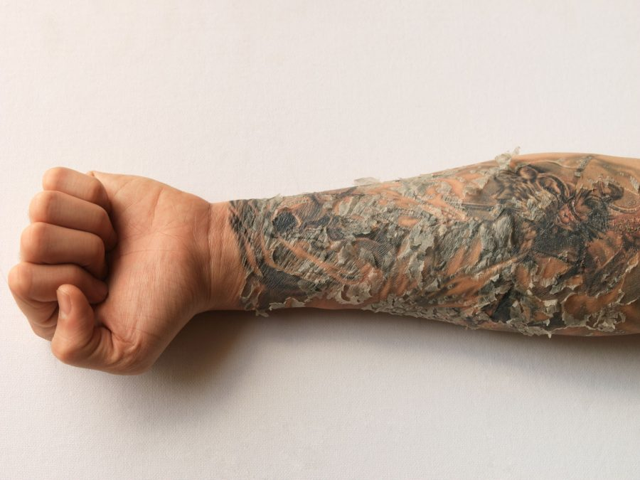 Tattoo Peeling Lower Forearm Haling Process