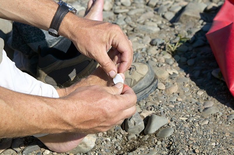 Treat-Blisters-Tactics-And-Techniques-To-Master-Wilderness-Survival