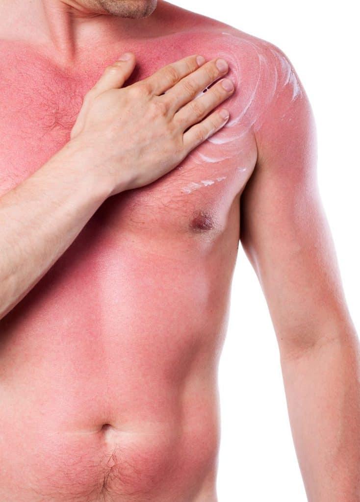 Bad Sunburn Red Skin