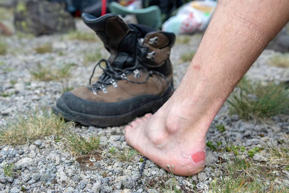 hiker got blister on his foot by hiking shoes outdoor
