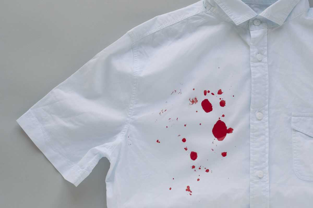 Blood,Stains,On,A,White,Shirt