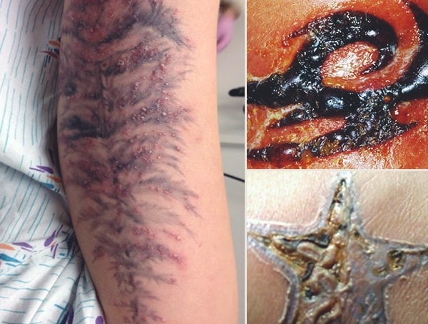 Common Tattoo Infection Symptoms