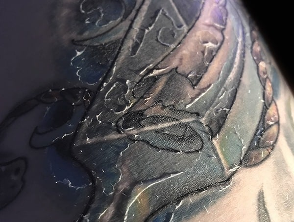 What To Do When Your Tattoo Is Peeling